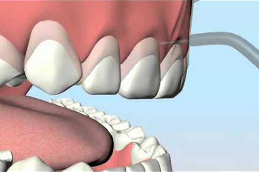 gingivoplastia-1