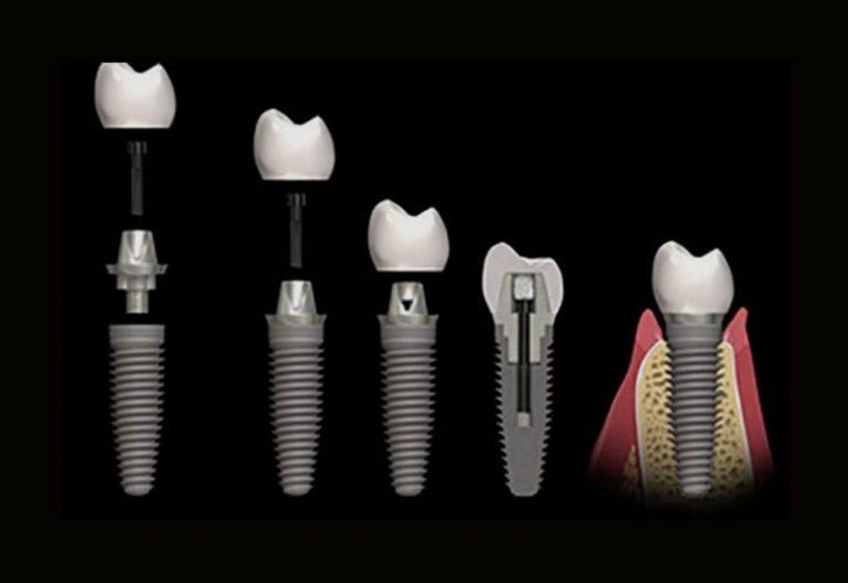 implantes-5