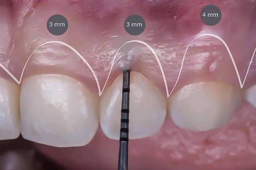 gingivoplastia-2