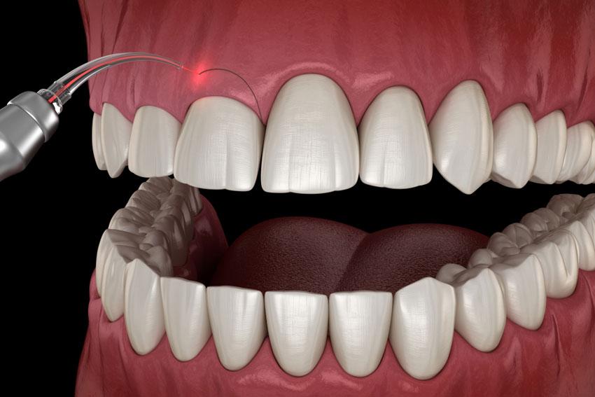 gingivoplastia-3